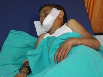 Erzincan da kurt saldırısı: 13 yaralı
